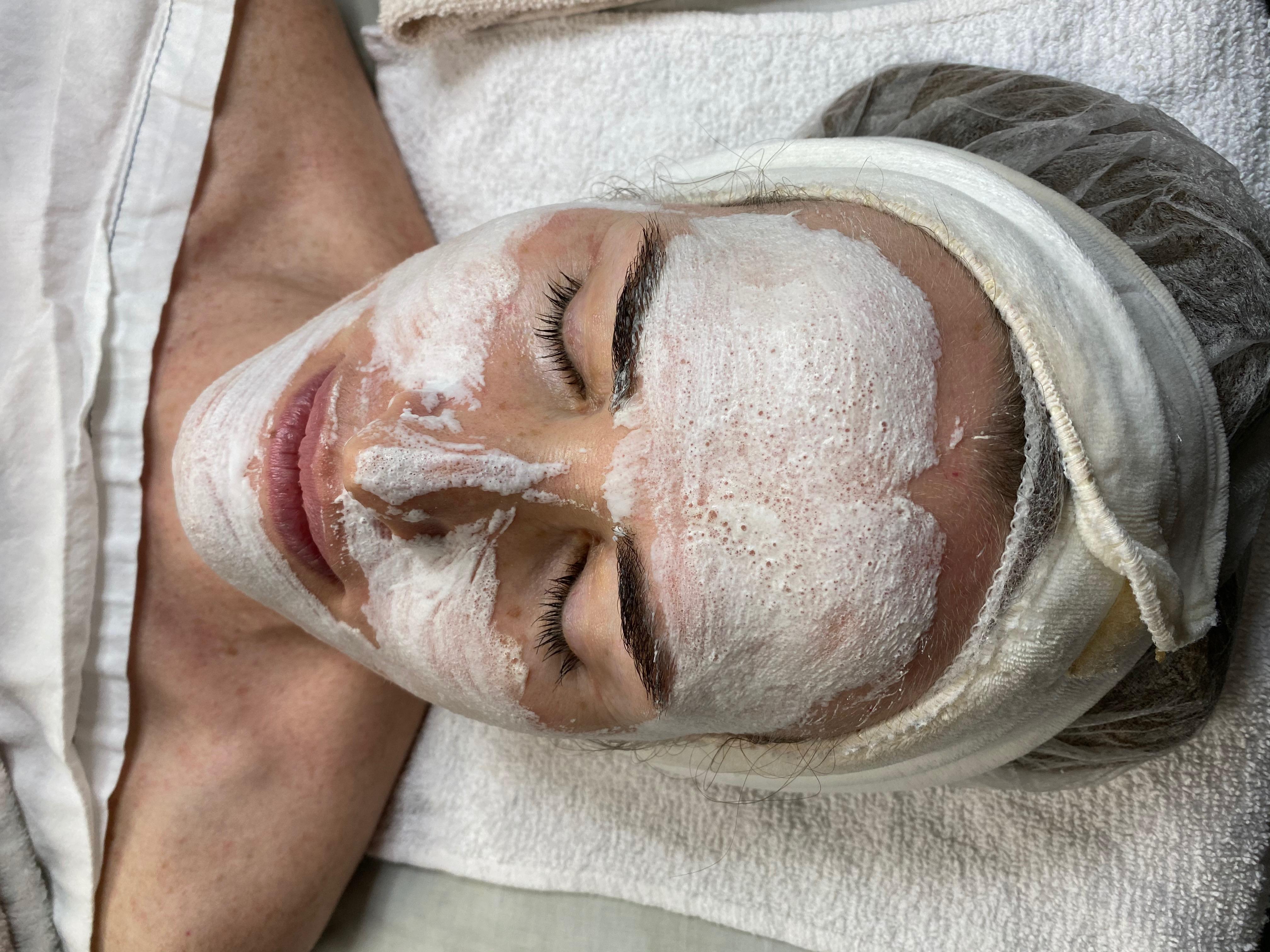 woman getting an O2 lift facial procedure